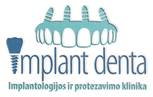implant denta logo